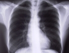 Lung Disease Double Whammy