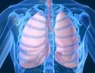 Vitamin D Won't Ward Off COPD Symptoms