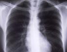 New Drug for COPD Symptoms