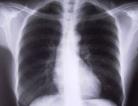 Pulmonary Fibrosis Treatments Work Well