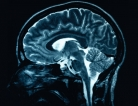 Molecular Superhero Slows Alzheimer's