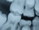 More Dental Check-ups Better Than Fewer