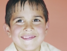 Chickenpox Vaccine Rules the Roost