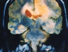 Early Brain Changes in Mental Health