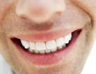 Acupuncture Relieves Chronic Dry Mouth