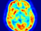 Detecting Dementia in Down Syndrome Adults
