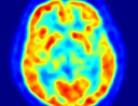 Making Alzheimer's a Better Memory