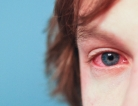 How are Allergies Linked to ADHD?