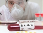 A New Treatment for Anthrax
