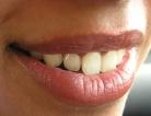 Brushing Teeth to Keep Heart Disease Away