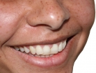 Dental Problems Plague Crohn's Patients