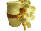 New Implant Eased Pain from Spinal Fractures