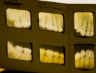 Dental X-rays Increase Brain Cancer Risks