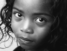 Diagnosing Childhood Arthritis